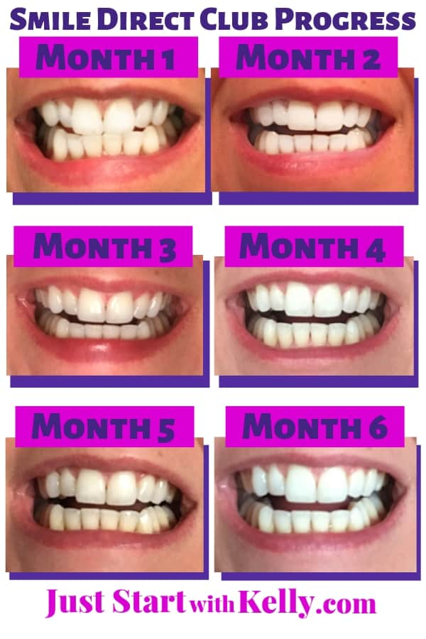 Height Inches Smile Direct Club  Clear Aligners