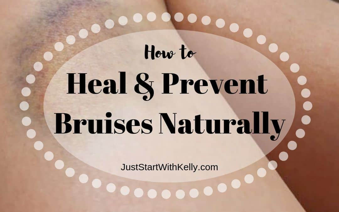 How to Heal and Prevent Bruises Naturally
