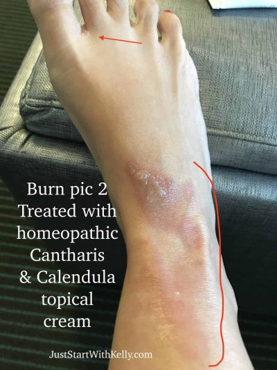 burned foot treated with homeopathy